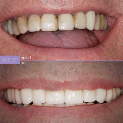 Braki zębowe uzupełnione implantami
