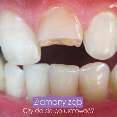 Czy złamany ząb da się ocalić?