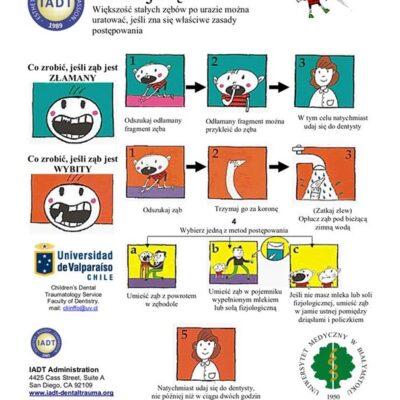 Jak uratować złamany lub wybity ząb?