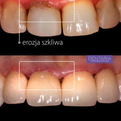 Erozja szkliwa, czyli co zjada twoje zęby?