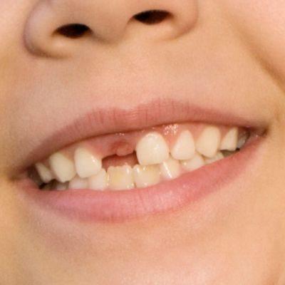 Utrata zęba stałego i co dalej ?