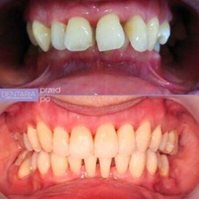 Leczenie ortodontyczne aparatem Insignia.