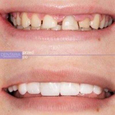 Zgryz dziecka leczony ortodontycznie
